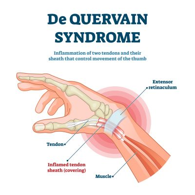 """A diagram depicting De Quervain Syndrome, one of the many answers to the question of, """"Why does my wrist crack when I rotate it?"""""""